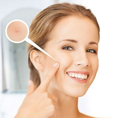 Acne Scars Treatment In Karachi Islamabad Pakistan Dynamic Clinic