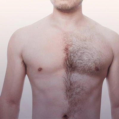Body Hair Transplant in Karachi, Islamabad & Pakistan | Dynamic