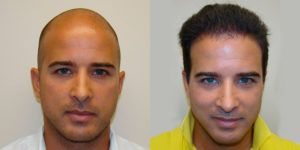 Hair Transplant in Islamabad, Rawalpindi & Pakistan