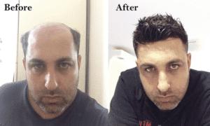 Hair Wigs for Men in Islamabad, Rawalpindi & Pakistan