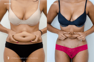 Liposuction in Islamabad, Rawalpindi & Pakistan