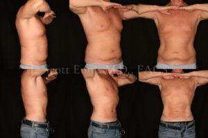 Liposuction in Islamabad, Rawalpindi & Pakistan