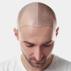 scalp micro-pigmentation in Islamabad, Pakistan & Rawalpindi.jpg