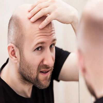 Best Hair Transplant in Peshawar - FUT, FUE Hair Transplant Clinic