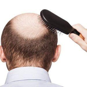 Hair Transplant in Rawalpindi Pakistan