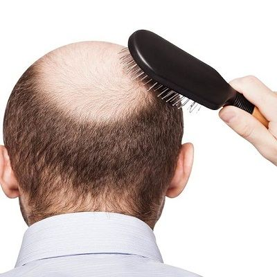 Hair Transplant in Rawalpindi Pakistan