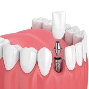 Dental implants in Islamabad, Rawalpindi & Pakistan