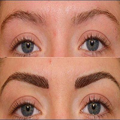 Eyebrow Hair Transplant in Islamabad, Rawalpindi & Pakistan