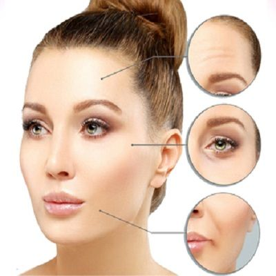 Botox for wrinkles Removal in Islamabad Pakistan