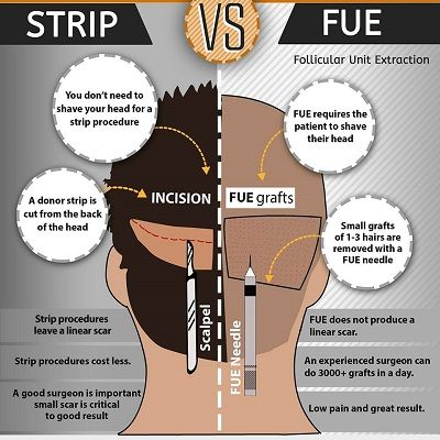 Difference Between FUE or FUT Hair Transplant