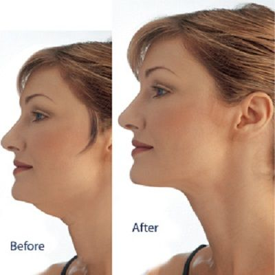 Double Chin Liposuction in Islamabad, Rawalpindi & Pakistan
