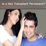 Hair Transplant Permanent in Male Pattern Baldness
