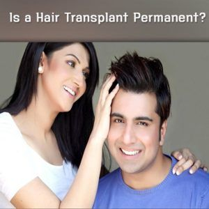 Hair Transplant Permanent in Male Pattern Baldness