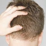 Hair Transplant is Safe and Produces Natural Results
