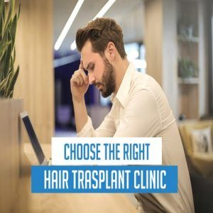 How to Choose the Right Clinic for Hair Transplant