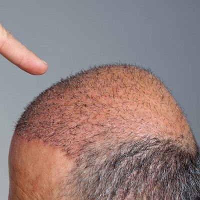 Is There any Side Effect of Hair Transplant Surgery