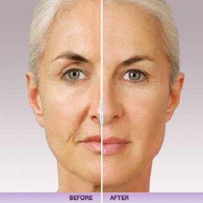Juvederm treatment Islamabad Pakistan