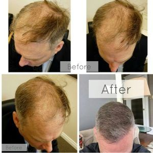 Things Done After a Hair Transplant Procedure