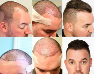 Things Done After a Hair Transplant Procedure Pakistan