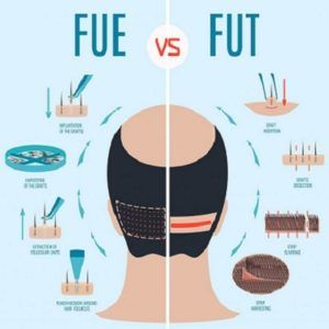 Which Type of Hair Transplant is Best For You?