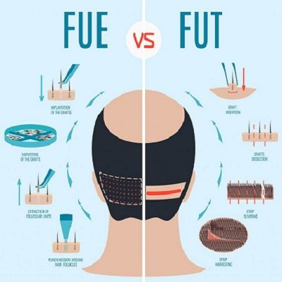 Which Type of Hair Transplant is Best For You
