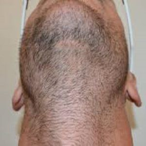 Why People Choose the Body Hair Transplantation?
