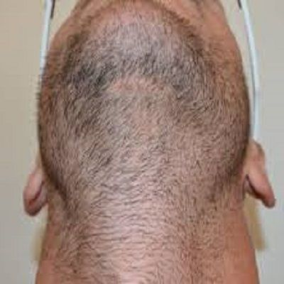 Why People Choose the Body Hair Transplantation