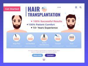 hair transplant infographic