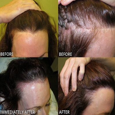 Wondering What Hair Restoration Techniques are Right for you?