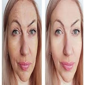 laser treatment for face in islamabad pakistan