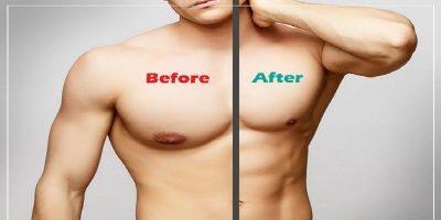 Gynecomastia Male Breast Reduction Cost Islamabad