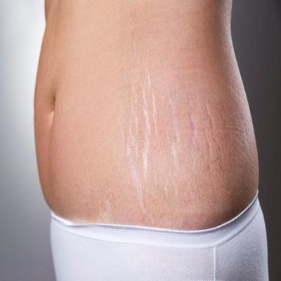 stretch mark removal in karachi islamabad pakistan